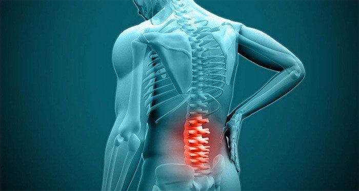 terapia del dolore - lombalgia